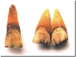 tandgroeven